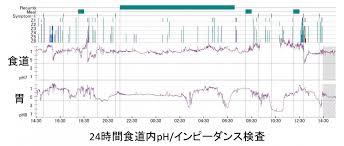 24時間食道インピーダンス・pHモニタリングの解析結果