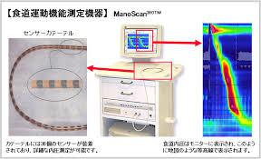 食道内圧測定検査の機械と解析結果