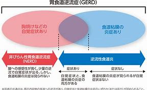 GERDの分類を示した図