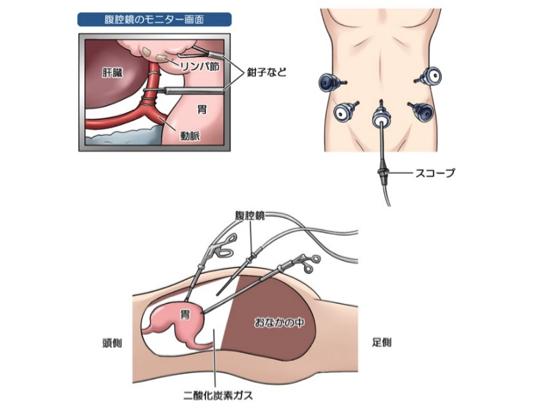 腹腔鏡手術についてまとめた図