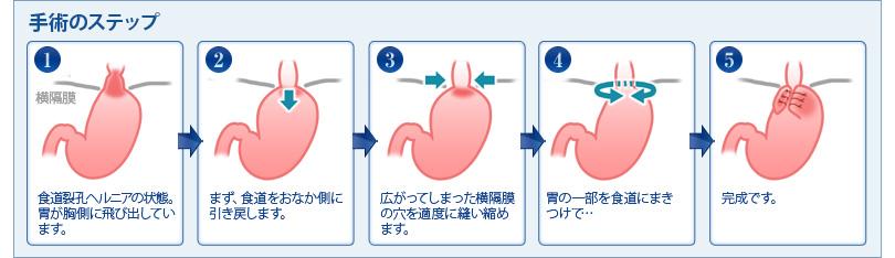 Nissen手術の手順をまとめた図