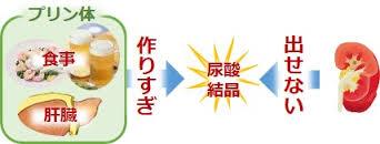 尿酸結晶ができる機序