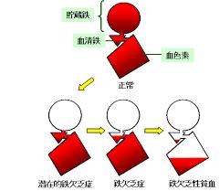 潜在的鉄欠乏状態を説明する図