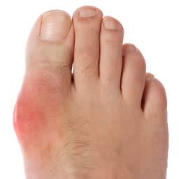 腫れた足の親指