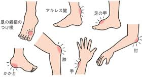 尿酸結節ができやすい部位