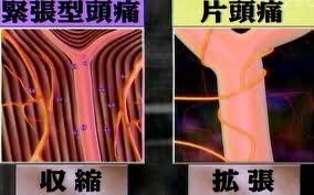 片頭痛の原因としての血管の拡張