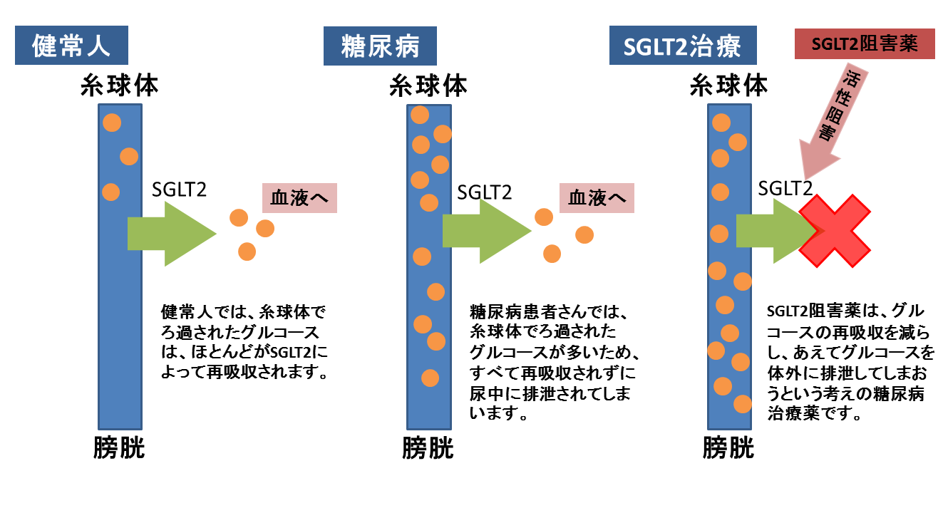 SGLT-2の作用機序を示す図