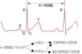心電図の波形でのR-R間隔を示した図