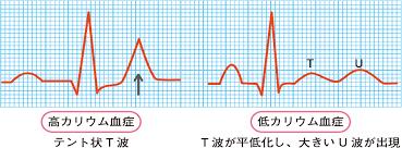 カリウムの異常で生ずる不整脈を示す心電図の所見