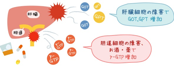 AST ALTとALP γGTPが上昇する病態の違いの説明