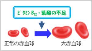 貧血 ビタミン 悪性
