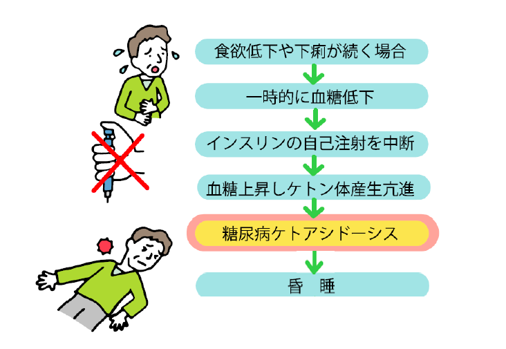 糖尿病性ケトアシドーシスの発症機序の説明図