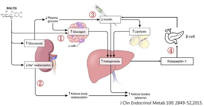 SGLT2阻害薬のより体内でケトン体が増えることを説明する図