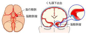 くも膜下出血の原因となる脳動脈瘤の図示