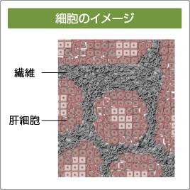 肝臓内に繊維が溜まっていることを示す顕微鏡写真