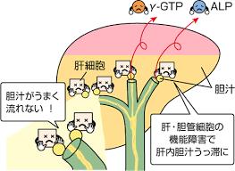 胆管細胞のダメージ 胆管閉塞で血中ALPが高くなることを説明した図