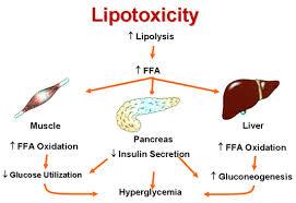 脂肪毒性が筋肉 膵臓など全身の臓器に及ぼす悪影響をまとめた図