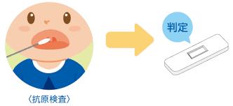 マイコプラズマ抗原簡易検査キット