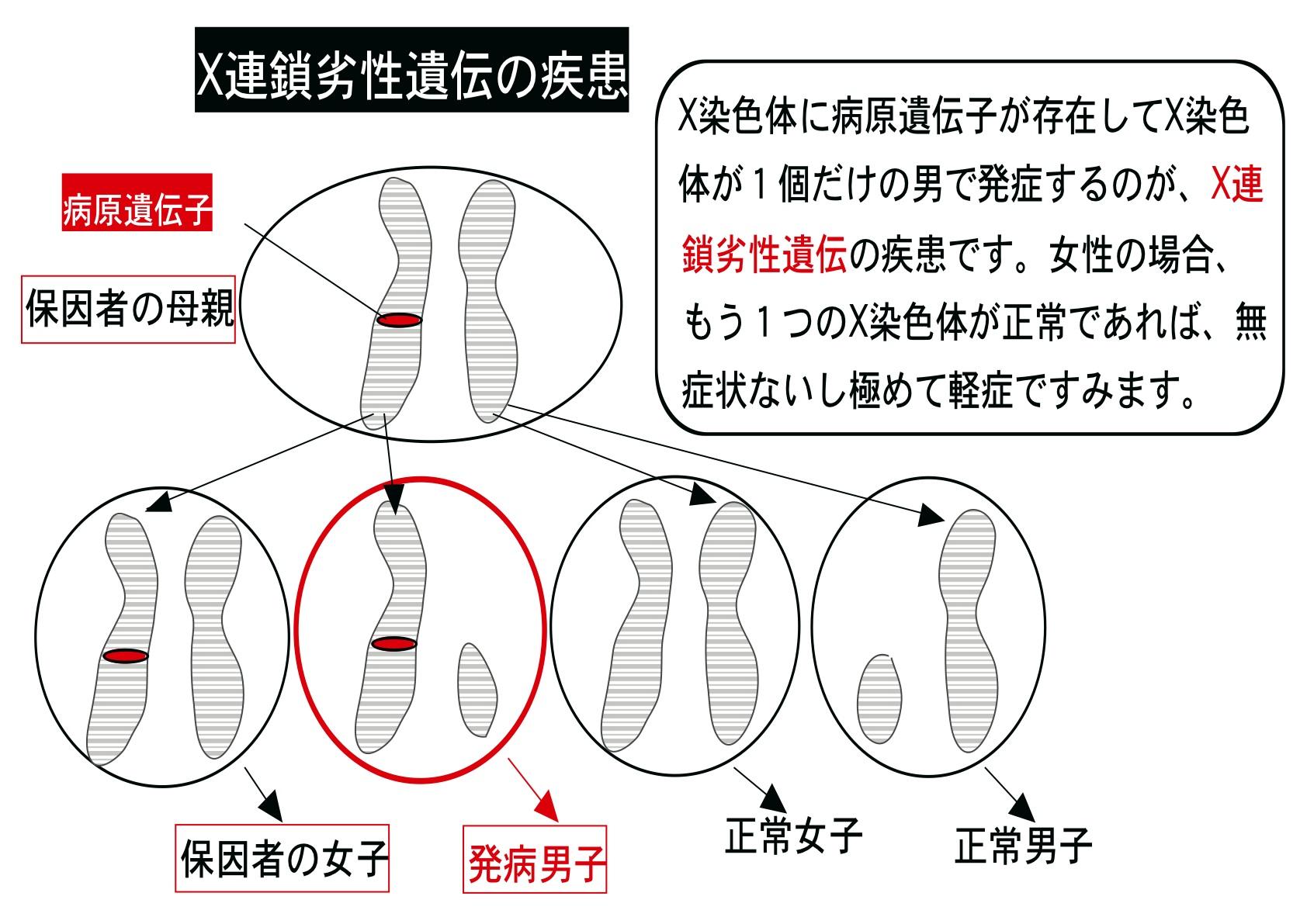 X染色体の遺伝子の異常による病気をまとめた図