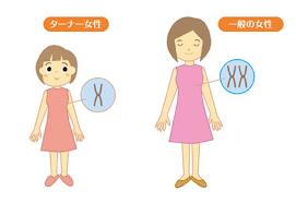 ターナー症候群の説明図