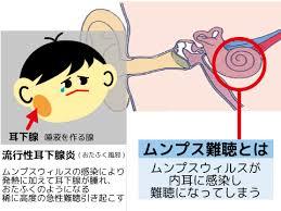 ムンプス難聴の説明図