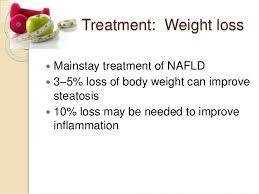 NASHは減量すれば良くなることを強調するスライド