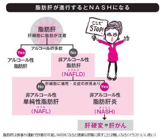 脂肪肝がNASHになり NASHが肝硬変 肝がんになるリスクがあることを注意するパンフレット