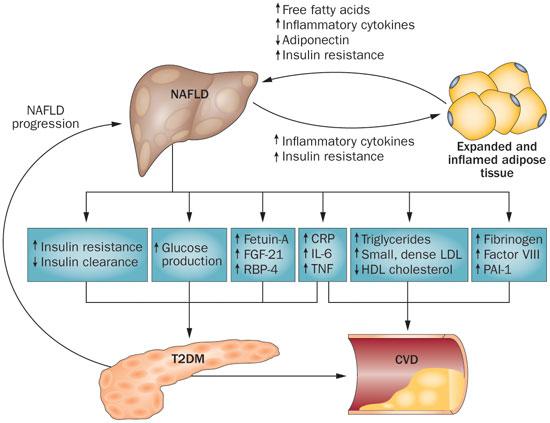 糖尿病とNAFLDの相互に及ぼす悪影響を解説している図