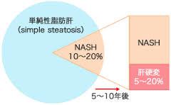 NAFLDにおけるNASHの頻度を示した円グラフ