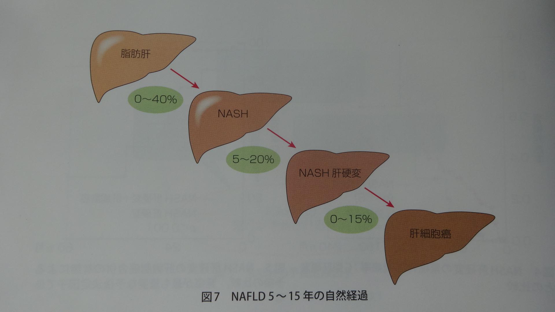 脂肪肝からNASH 肝硬変 肝がんに進展していく割合を示す図