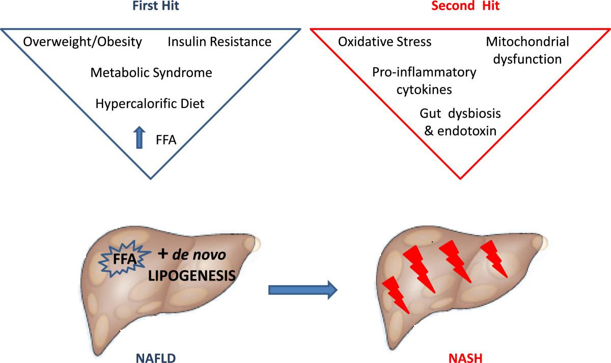 NASHの病態形成に関わるさまざまな因子