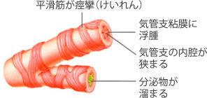 気管支のけいれんを示す図