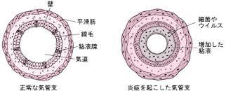 気管支の浮腫を示す図