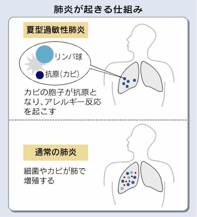 夏型過敏性肺炎はアレルギー反応で起こることを示す図