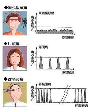 1か月間に頭痛が起こる日数による頭痛の種類の鑑別