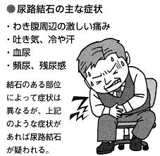 尿管結石の症状