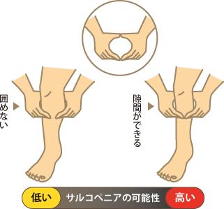 指輪っかテストの解説図
