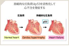 p53が心不全が発症・進展させることを示した図