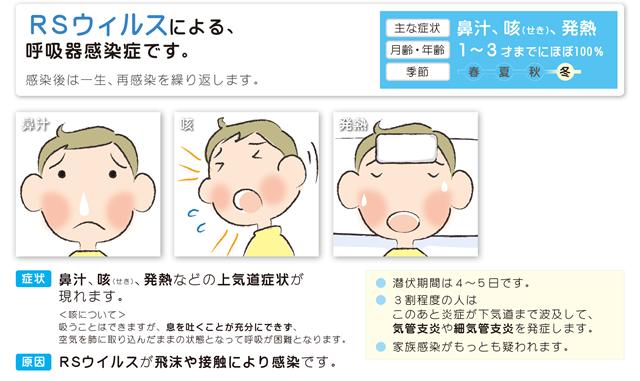 RSウイルス感染症の症状などの説明図