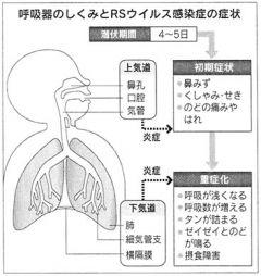 RSウイルス感染症の呼吸器症状の説明図