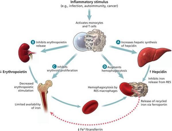 炎症がさまざまな臓器に影響を及ぼし貧血が生じる機序をまとめた図