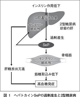 sepの過剰産生と糖尿病発症との関連を解説する図