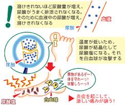 痛風発作が起こる機序を説明する図