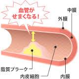 動脈硬化になると血流が滞りやすくなることを示す図