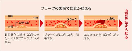 血栓ができると血管が詰まることを示す図