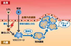 プラーク形成の過程を示した図