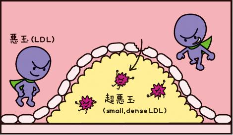 血管内膜で超悪玉コレステロールが形成される過程を示した図1