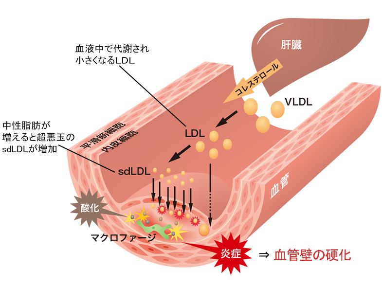 血管内膜で超悪玉コレステロールが形成される過程を示した図2