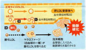 超悪玉コレステロールはLDL受容体に結合しにくいので血中や血管壁に滞在する時間が長くなり酸化されやすくなることを示す図