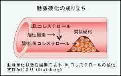動脈硬化への酸化LDL-Cの関与の説明図